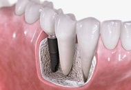 Dental Implants in Hungary Image