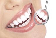 Teeth Whitening in Costa Rica Image