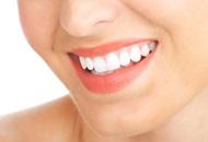 Teeth Whitening in Thailand Image