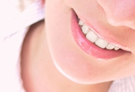 Dental Implants in Thailand image