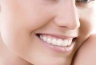 Dental Veneers in Hungary Image