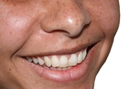 Teeth Whitening in Mexico Image