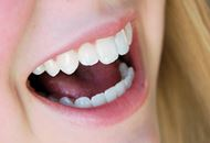 Dental Implants in the Philippines Image