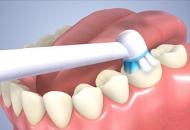 Dental Implants in the Czech Republic Image