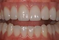Dental Veneers in Spain Image