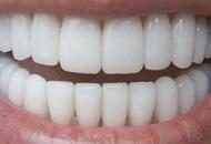Teeth Whitening in Malaysia Image