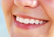 Dental Implants in Spain Image
