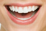 Root Canal Treatments in Costa Rica Image