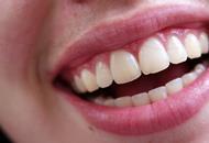 Dental Implants in Dubai Image
