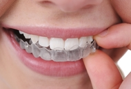 Orthodontics in Malaysia Image