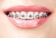 Orthodontics in Poland Image