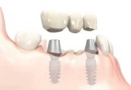 Dental Implants in India Image