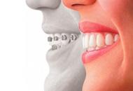 Dental Veneers in the Philippines Image