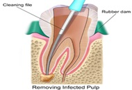 Root Canal Treatments in Thailand Image
