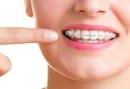Orthodontics in Hungary Image